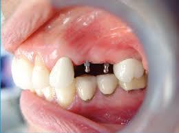 implant markalarının önemi nedir, implant markaları, güvenilir implant markaları