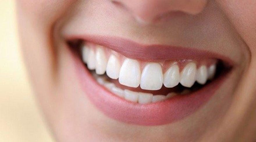 lamine diş tedavisi, lamine diş tedavisi ne kadar sürer, lamine diş tedavisi yapım süresi