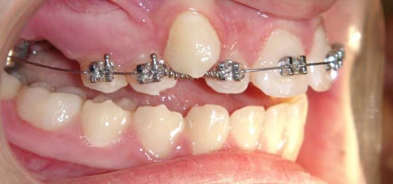 ortodonti fiyatları, ortodonti fiyatları ne kadar, ucuz ortodonti fiyatları