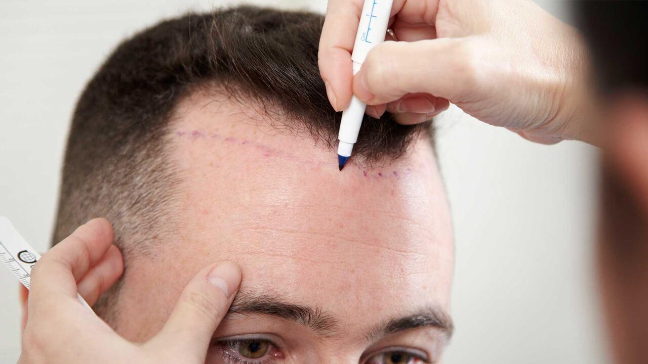 saç ektirme, saç ekimi detayı