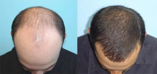 saç ektirme fiyatları, saç ektirme fiyat aralıkları, saç ekim işlemi