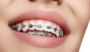 ortodonti tedavisi, ortodonti tedavi çeşitleri neler