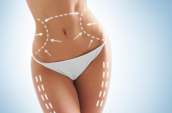 bakırköy liposuction fiyatları, liposuction ameliyatı fiyatları, liposuction yaptırma fiyatları