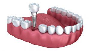ucuz implant, implant yaptırma, implant fiyatları