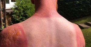 güneş yanığı tedavisi, güneş yanığı nasıl tedavi edilir, güneş yanığını geçirme