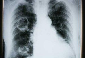 akciğer kanseri, akciğer kanseri nedenleri, akciğere neler sebep olur