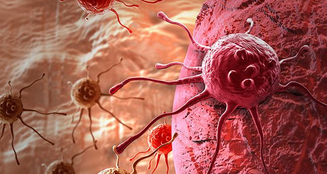 mide kanseri tedavisi, mide kanseri tedavileri, kemoterapi ile mide kanseri tedavisi