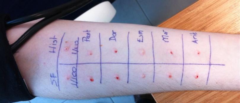 alerji testi yapımı, alerji testi nasıl olur, alerji testi neden yapılır